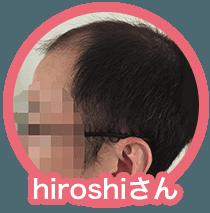 """""""ヒロシさん""""/"""