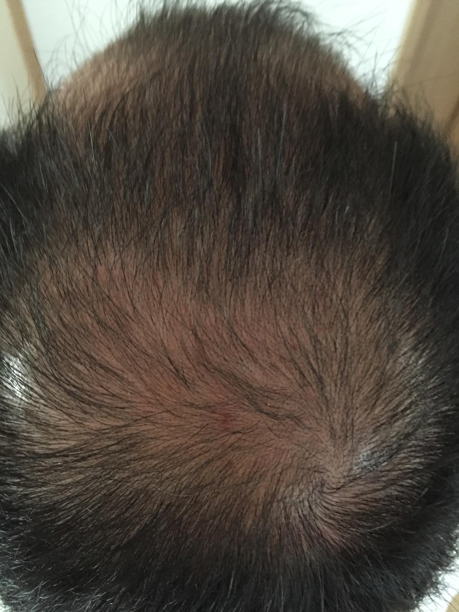 現在の頭皮