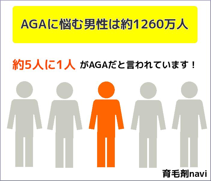 男性の5人に1人がAGA